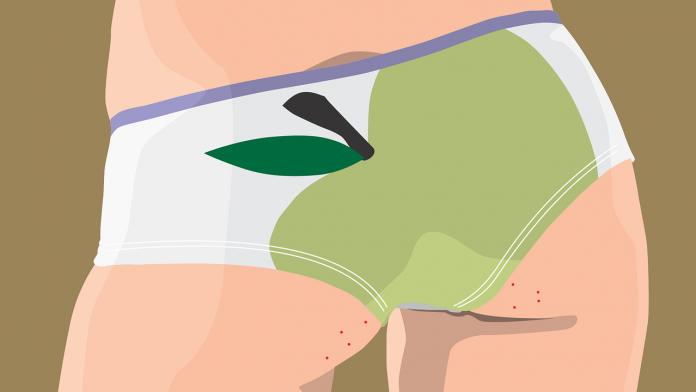 12 Remédios Caseiros para tratar Acne nas Nádegas